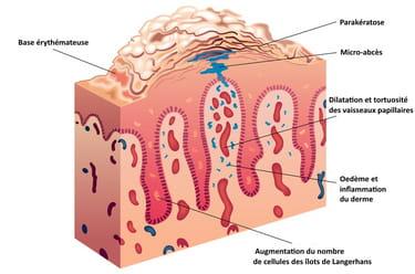 Sur le sein le psoriasis
